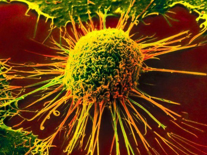 В Голландии признали сыроедение официальным методом лечения РАКА!