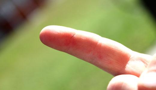 Как сдают анализ на грибок ногтя