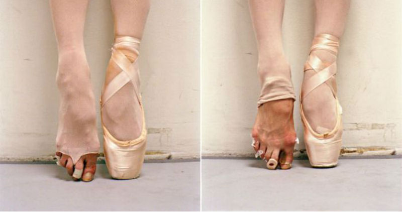 Пользовательница «Пикабу» показала другую сторону балета