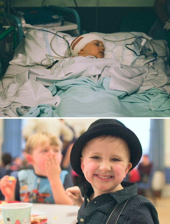 9. 14 раундов химиотерапии, 30 раундов лучевой терапии, 4 операции... Но мальчика спасли! вдохновляющее, выжившие, до и после, заболевание, рак, сильные духом