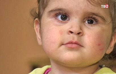 Московские врачи вернули зрение 6-месячной девочке из Сирии