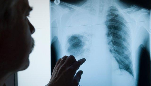 Можноли заразиться туберкулезом наулице? Вакцина защищает на100%?