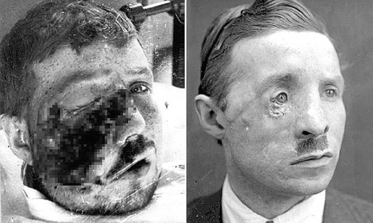 Солдаты Первой мировой - пациенты первых пластических хирургов