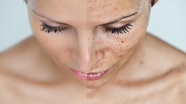 Домашние средства для кожи, которые отбеливают пигментные пятна