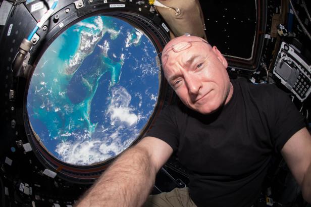 Длительное пребывание в космосе не наносит необратимого вреда здоровью