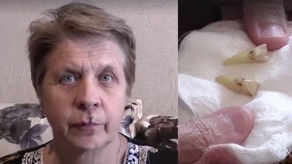 """""""В погоне за верой"""": Пенсионерке выбили зубы в очереди к мощам Николая Чудотворца"""