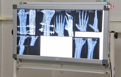 Собянин назвал развитие травматологии приоритетом столичной медицины
