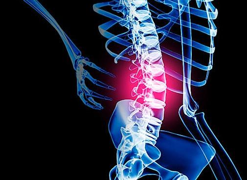 Люмбаго – первый сигнал тревоги при заболеваниях спины.