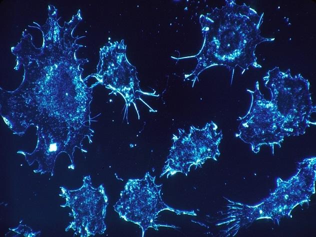 Биологи научились контролировать рост раковых клеток