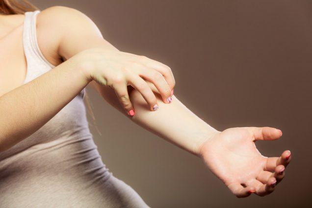 Лечение заболевания чесотки человека