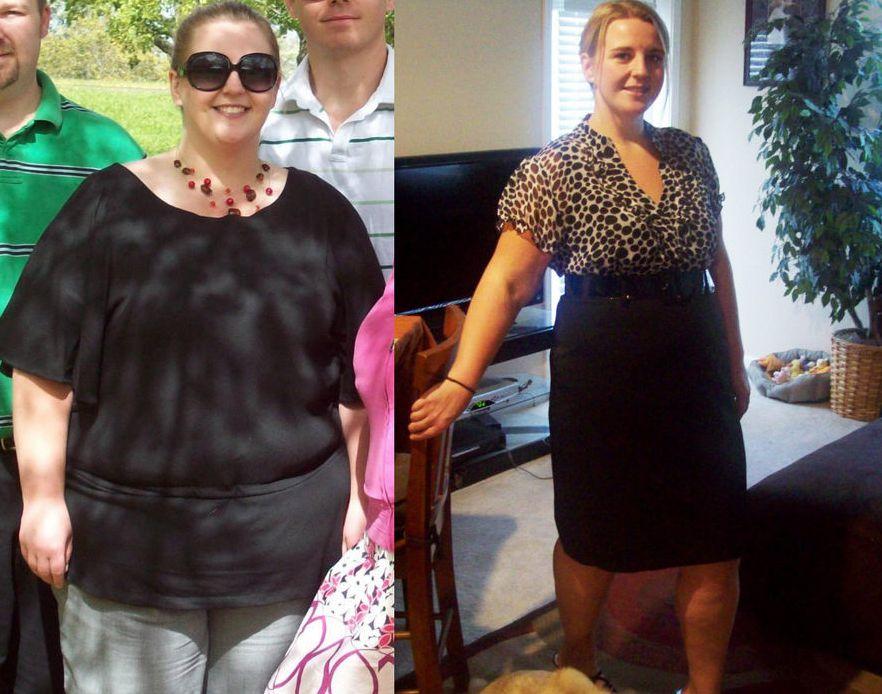 Как худеть при хронических заболеваниях почек и органов пищеварения