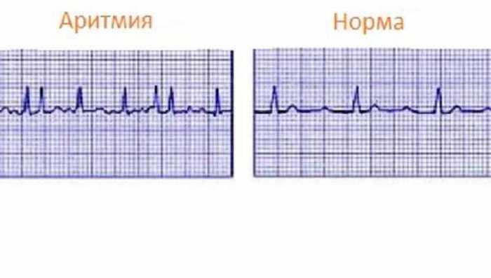 Пять простых способов успокоить сердце при аритмии