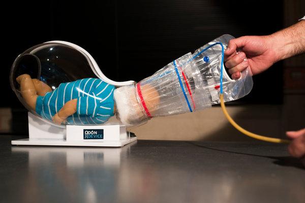 Аргентинец изобрел устройство для облегчения родов