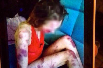 Липецкий ревнивец устроил фотосессию избитой до смерти жены