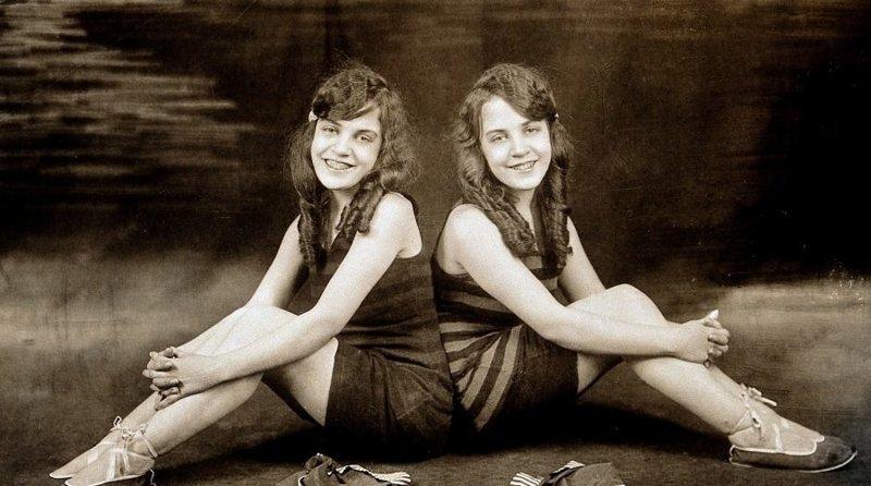 Сиамские близнецы Хилтон: скованные на всю жизнь