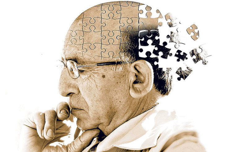 Деменция и Альцгеймер: чем они отличаются и как их избежать (спойлер: никак)