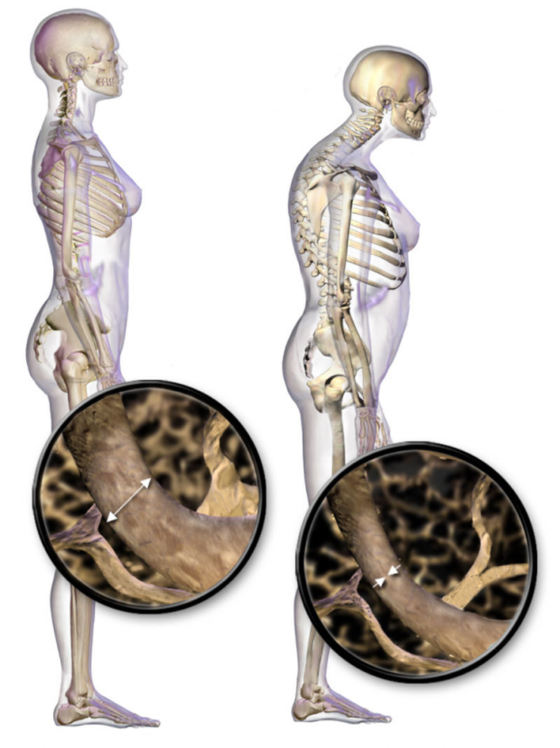 Остеопороз и дефицит кальция: ПРАВДА, о которой должна знать каждая