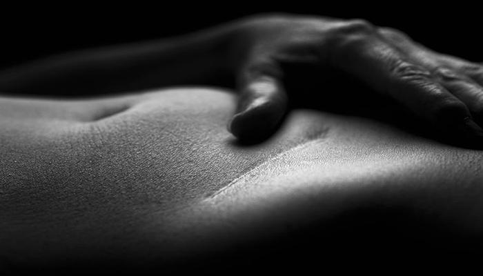 Клей из мидий поможет человечеству избавиться от шрамов