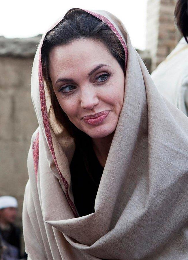 Сахар Тарбан: 50 операций, чтобы быть похожей на Анджелину Джоли