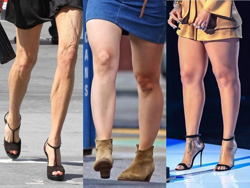 «Ах эти ножки»—  10 звёзд, …