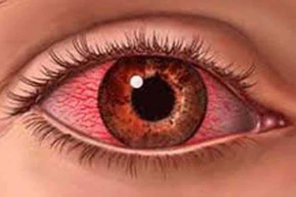 5 признаков ваших глаз, которые никогда нельзя игнорировать