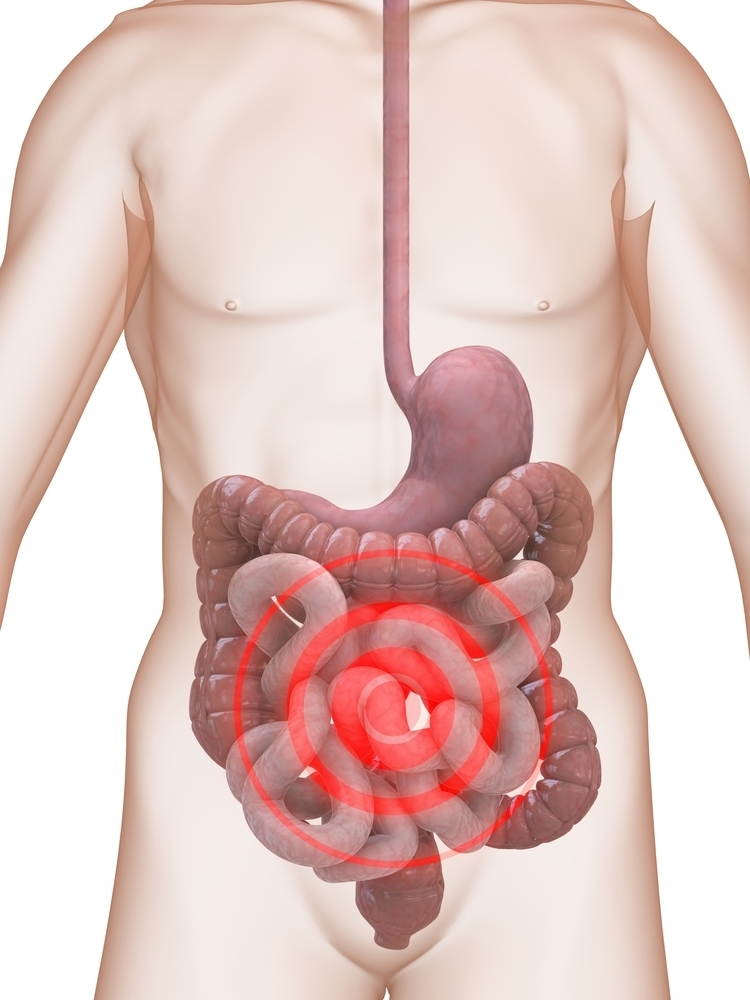 Синдром раздраженного кишечника — взгляд натуропата
