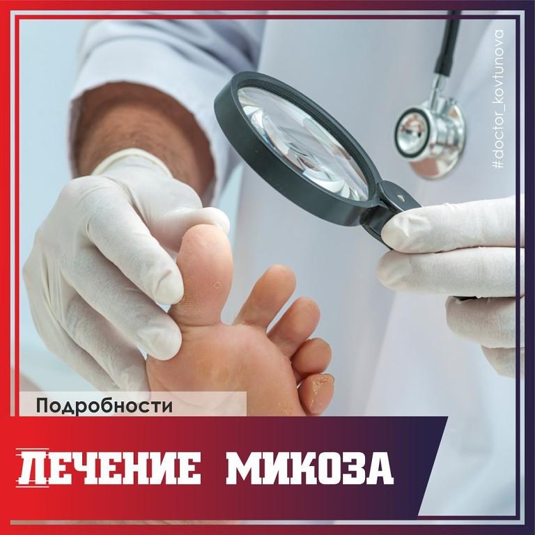 Лечение микоза