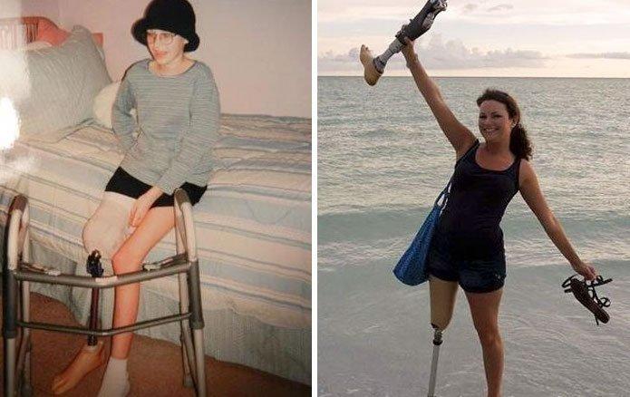 5. Фотографии с разницей в 10 лет. Десять лет без рака! вдохновляющее, выжившие, до и после, заболевание, рак, сильные духом