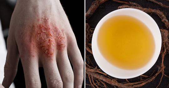 Чай, который борется с кожными проблемами, такими как экзема, псориаз и стригущий лишай