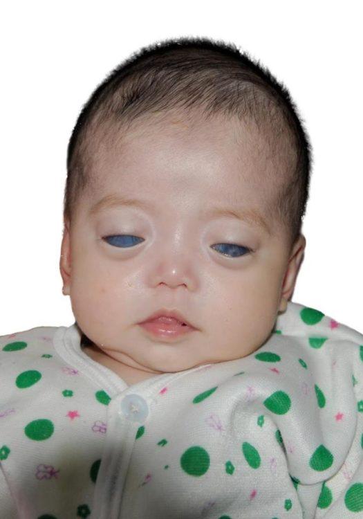 Никто не хотел удочерять девочку с «серебряными глазами», пока ее фото не увидела одна пара