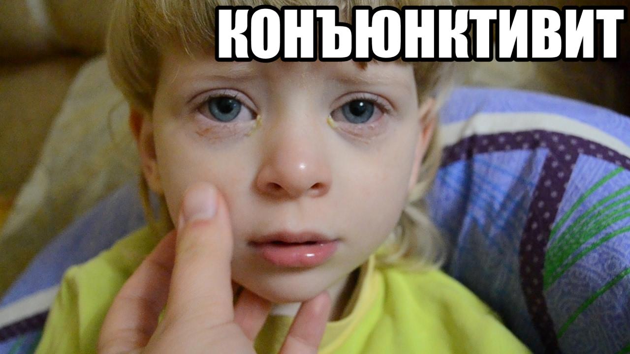 Конъюнктивит у детей - воспаление глаз - причины