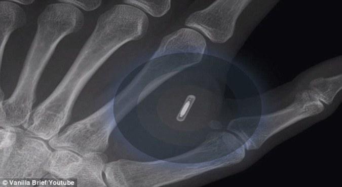 Австралиец внедрил в руку микрочип для работы с iPhone 6