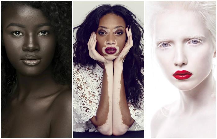 Люди с удивительным цветом кожи