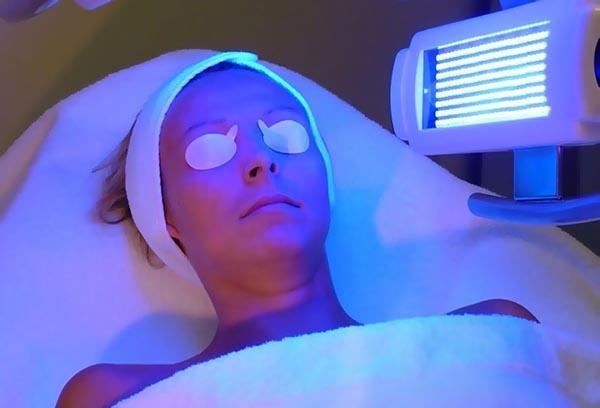 Лечение прыщей кварцевой лампой