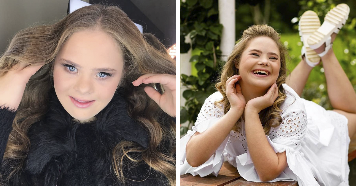 This Teen With Down's Syndrome Has Signed With 5 Modeling Agencies And Has 50k Followers On Instagram