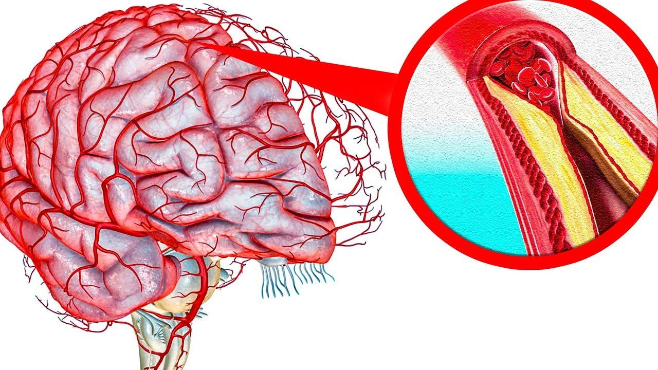 Картинки по запроÑу Как очиÑтить ÑоÑуды головного мозга