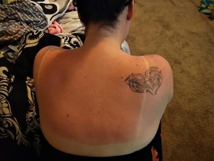 Мать двоих детей нашла безотказное средство от солнечных ожогов домашнее лекарство, домашняя аптечка, мамина смекалка, неожиданно, помоги себе сам, солнечные ожоги, солнце, средство от солнца