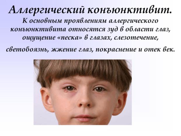 Аллергическая форма конъюнктивита у детей