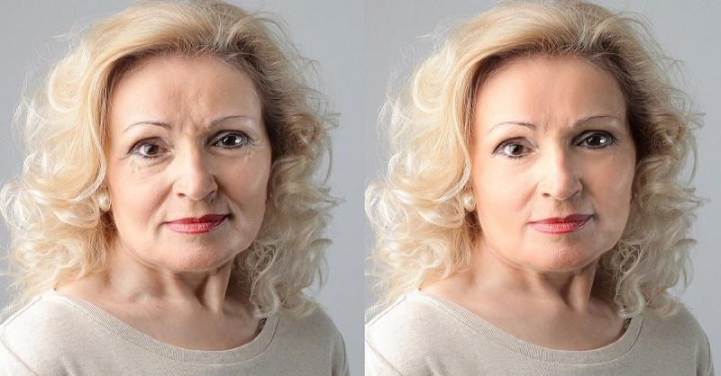 Каждому возрасту свое — когда имеет смысл делать различные процедуры красоты