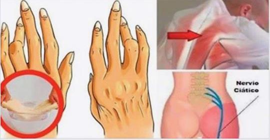 Держитесь подальше от этих 7 продуктов, если вы страдаете ревматоидным артритом!