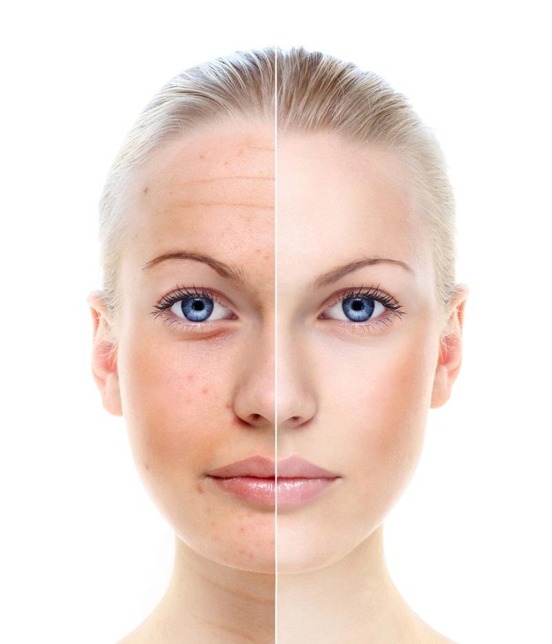 влияние сладкого на кожу
