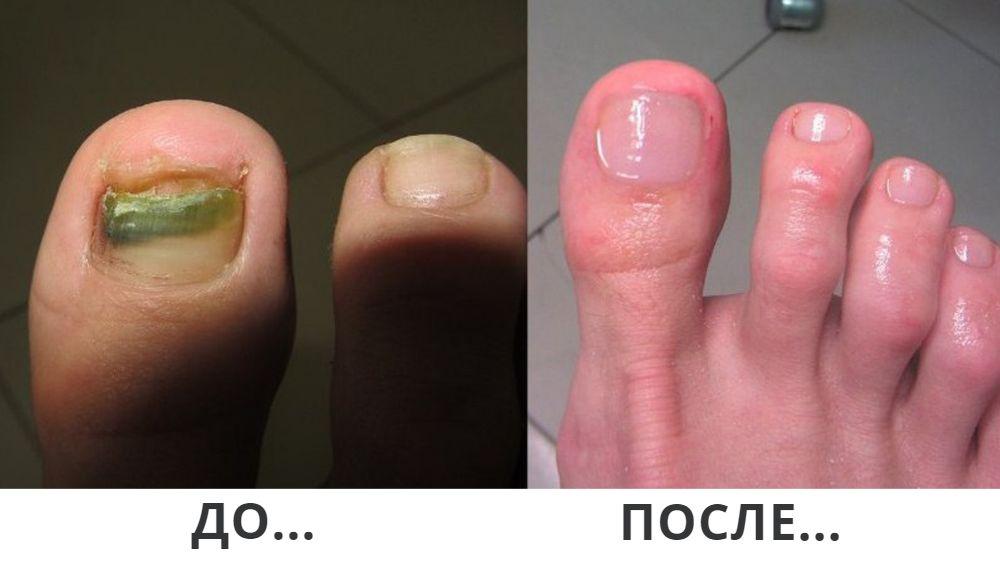Копеечное ЧУДО-СРЕДСТВО от грибка ног