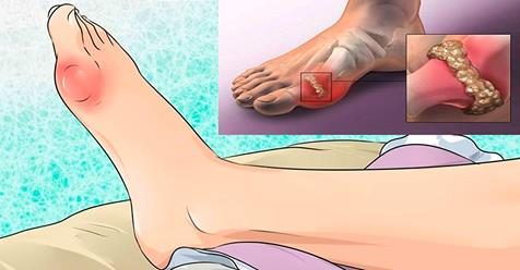 Как удалить мочевую кислоту и избавься от боли в суставах?