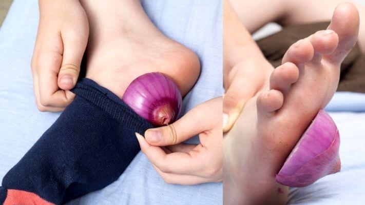Лук в носках — самый элементарный способ укрепить здоровье в холодное время года