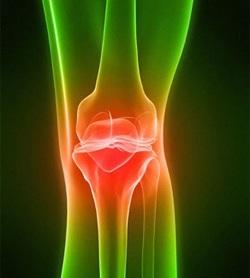 Артриты и артрозы эффективное лечение препараты