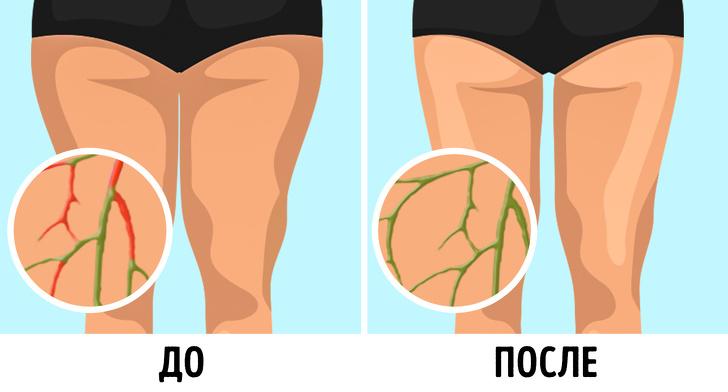 6простых лимфодренажных упражнений, скоторыми вес уходит без диет
