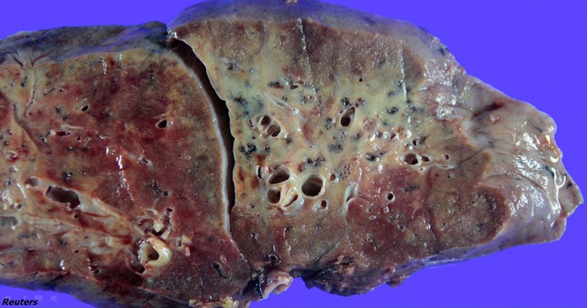 Так выглядит лёгкое, поражённое COVID-19  Ещё один повод беречься