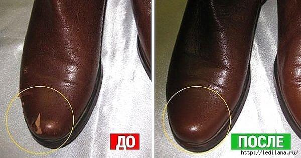 Скорая помощь обуви