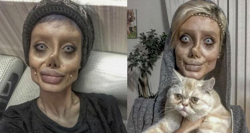 Иранка сделала 50 операций ради сходства с Анджелиной Джоли и теперь похожа на зомби