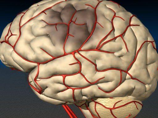 5 способов очистки сосудов головного мозга